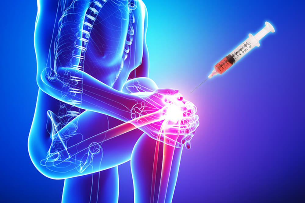 PRP Injections Therapy for Joint Pain and Sport Injuries