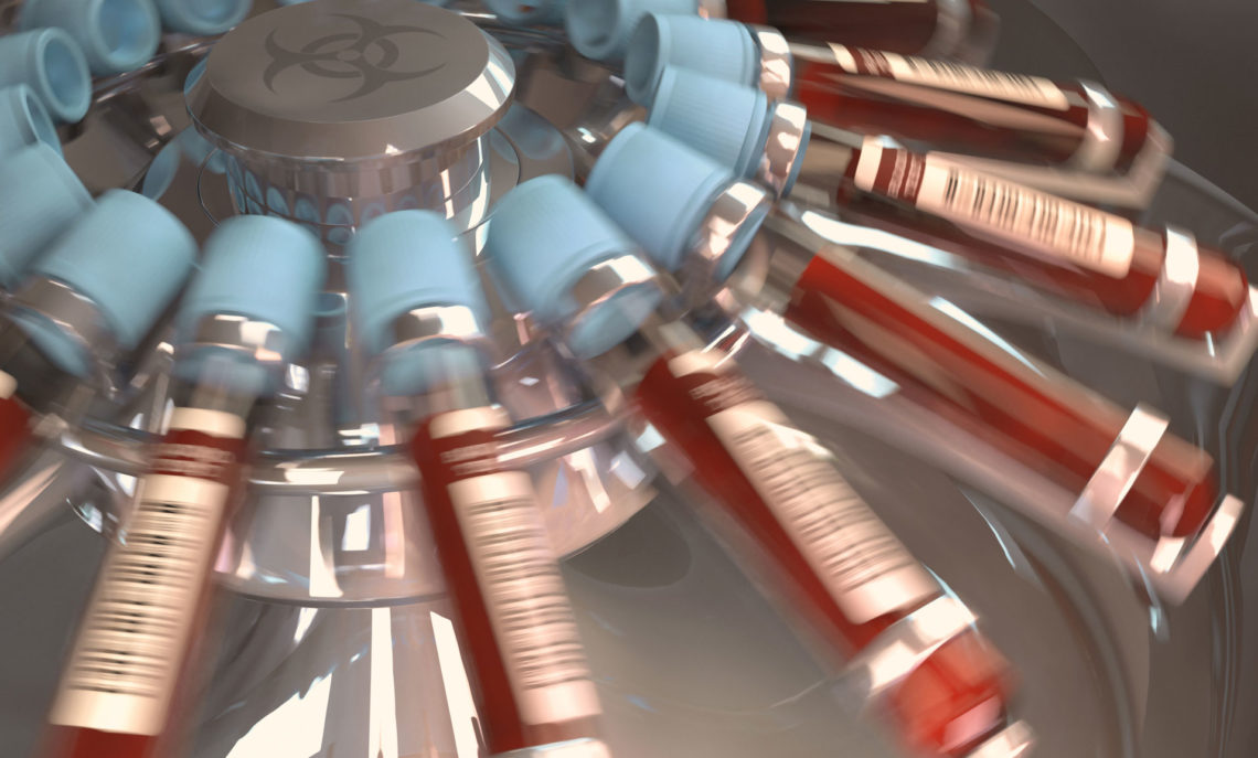 PRP Serum Preparation - Platelet Rich Plasma Service