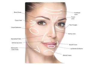 PRP Injections Facial Treatments