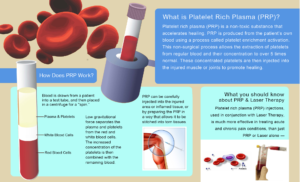 What is PRP Injections Therapy?